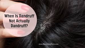 351 B.E.S.T. Treatment of Dandruff: Read more..