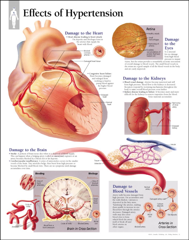 hypertension - photo #6