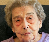 106 Year Old Woman